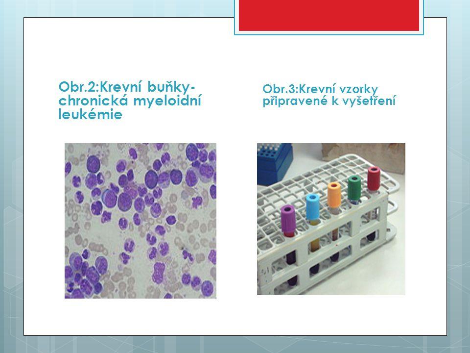Obr.2:Krevní buňky-chronická myeloidní leukémie