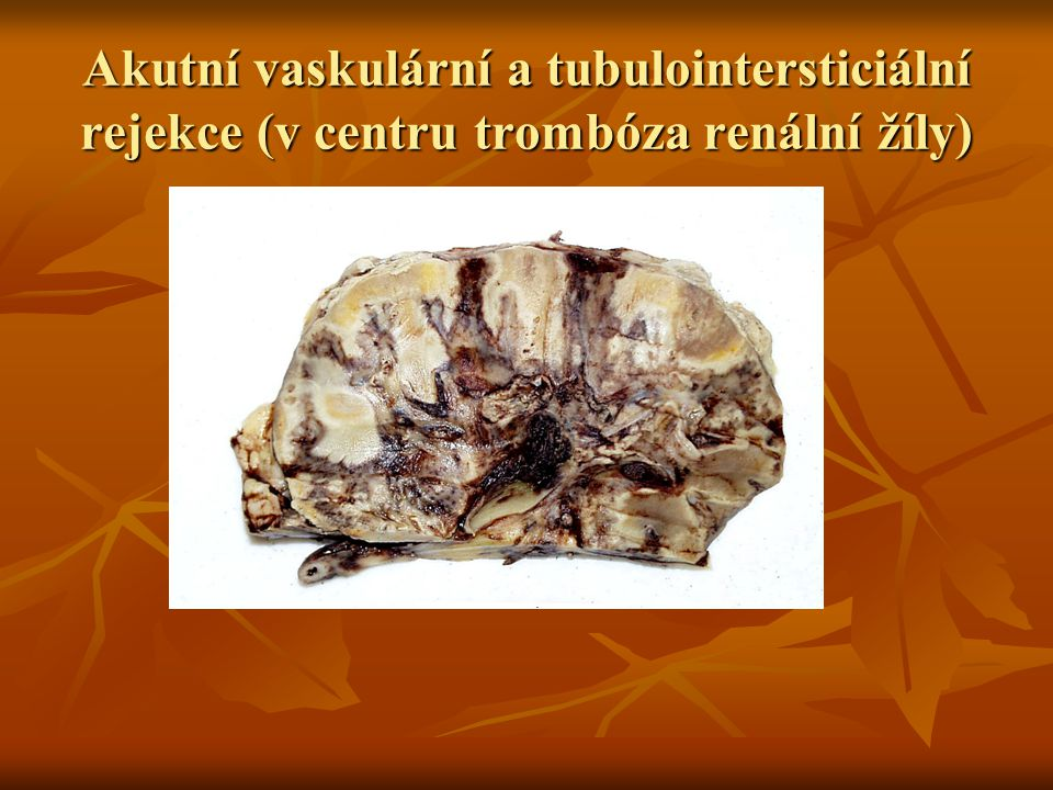 Akutní vaskulární a tubulointersticiální rejekce (v centru trombóza renální žíly)