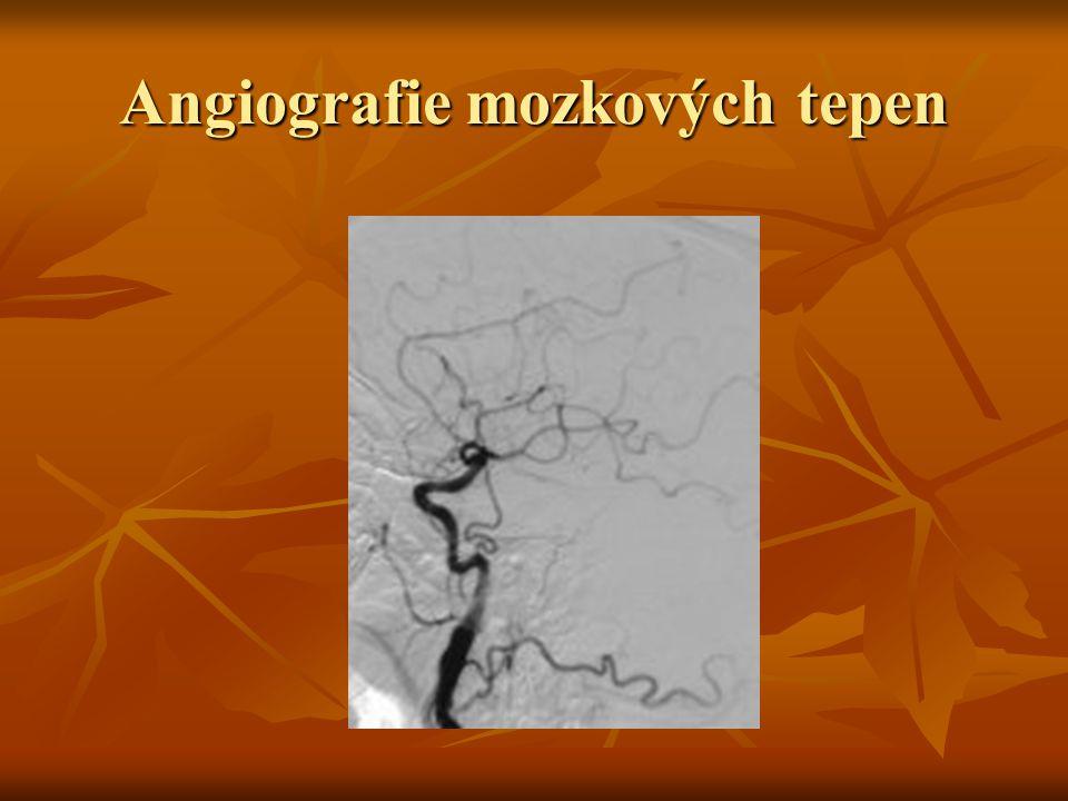 Angiografie mozkových tepen