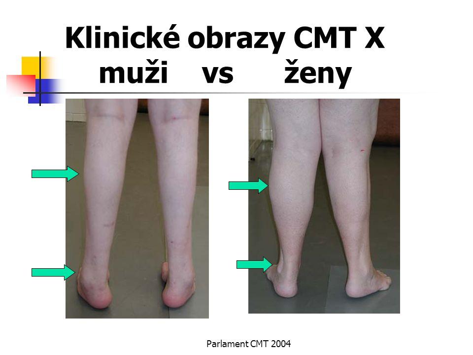 Klinické obrazy CMT X muži vs ženy