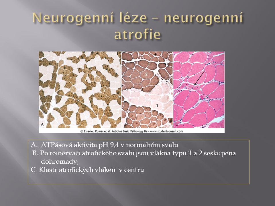 Neurogenní léze – neurogenní atrofie