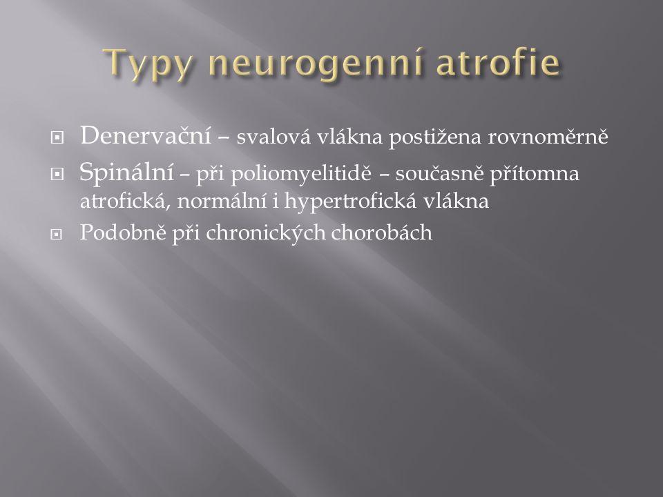 Typy neurogenní atrofie