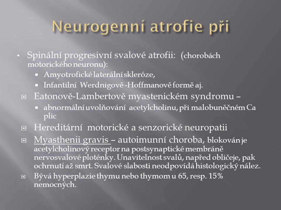 Neurogenní atrofie při
