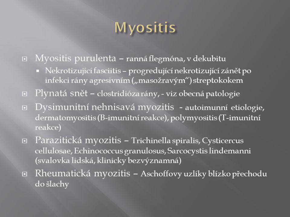 Myositis Myositis purulenta – ranná flegmóna, v dekubitu
