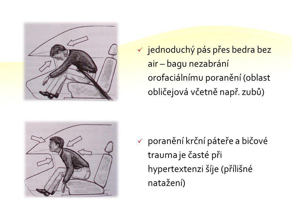 jednoduchý pás přes bedra bez air – bagu nezabrání orofaciálnímu poranění (oblast obličejová včetně např. zubů)