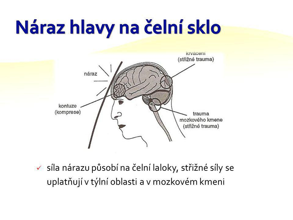 Náraz hlavy na čelní sklo