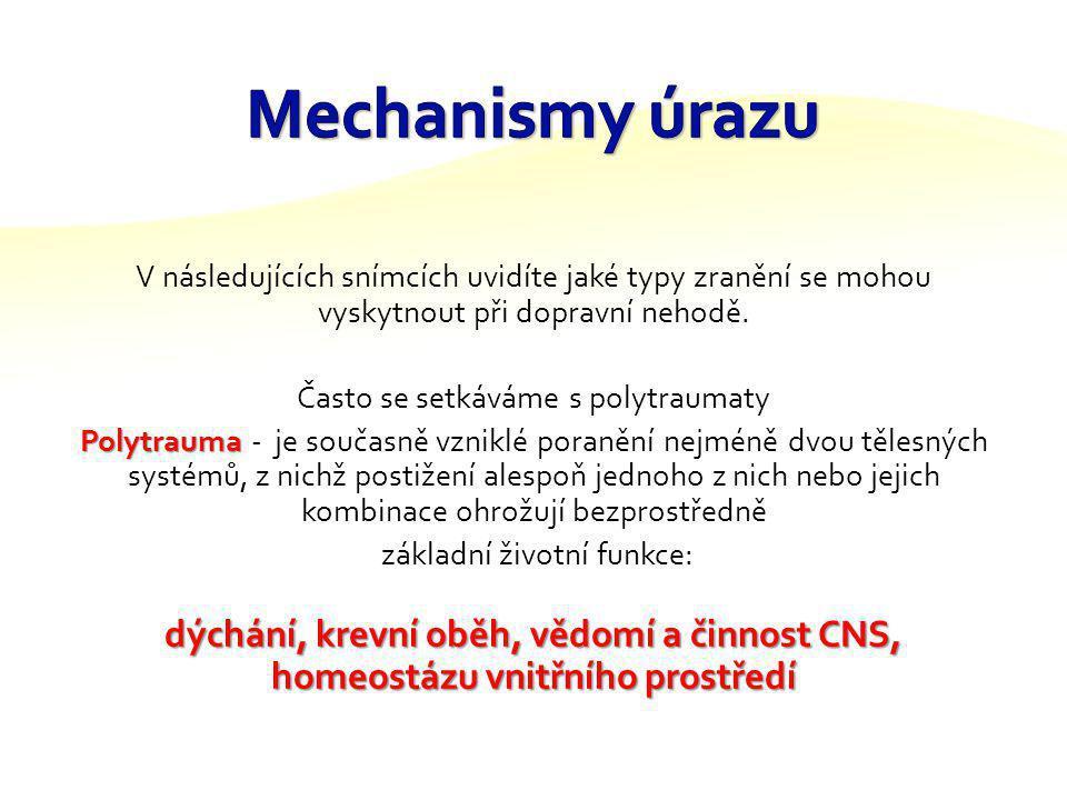 Mechanismy úrazu V následujících snímcích uvidíte jaké typy zranění se mohou vyskytnout při dopravní nehodě.