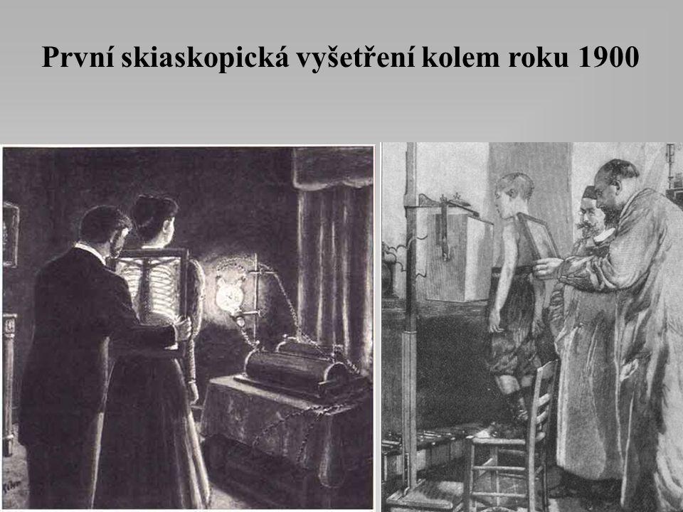 První skiaskopická vyšetření kolem roku 1900