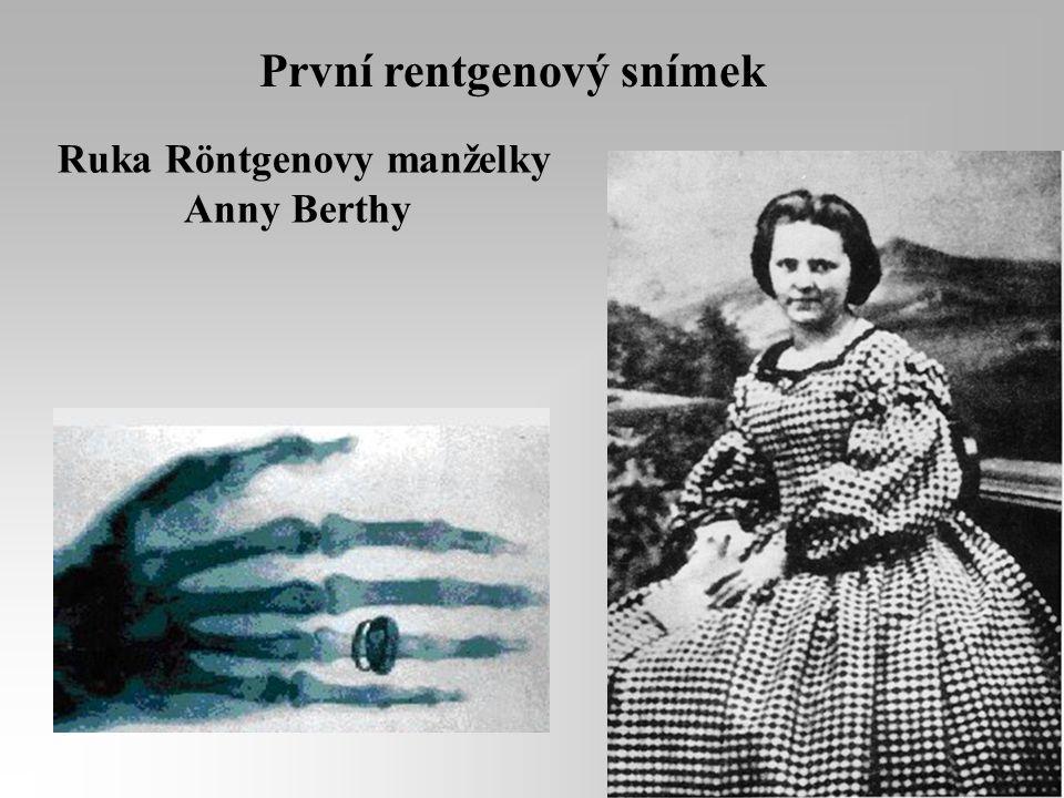 Ruka Röntgenovy manželky
