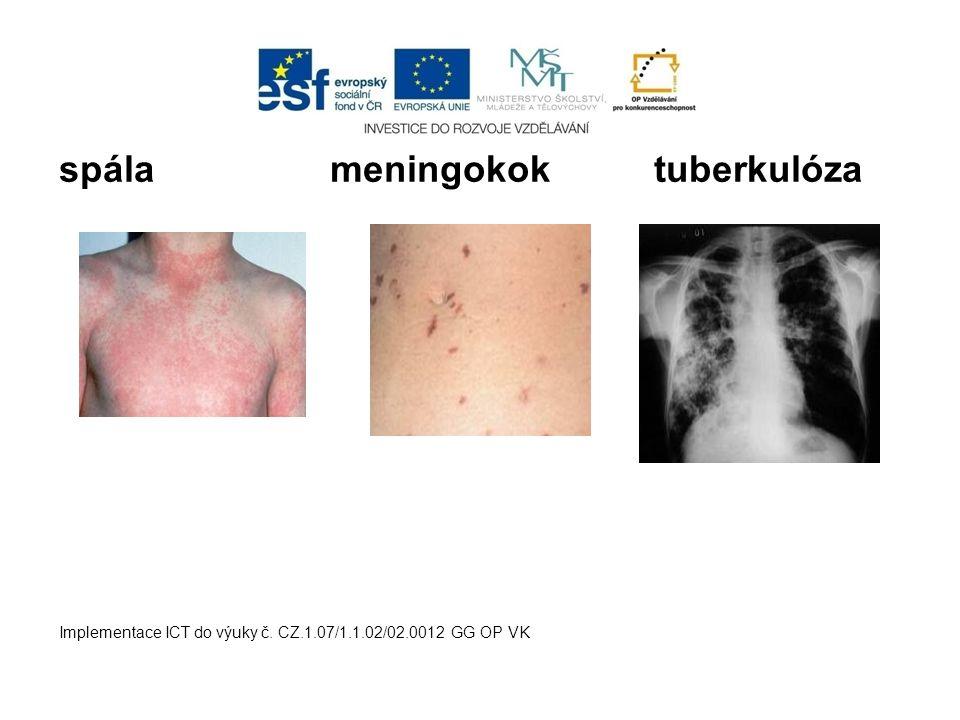 spála meningokok tuberkulóza