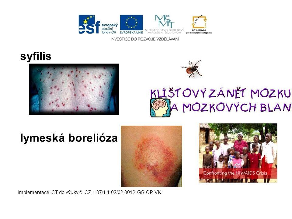 syfilis lymeská borelióza