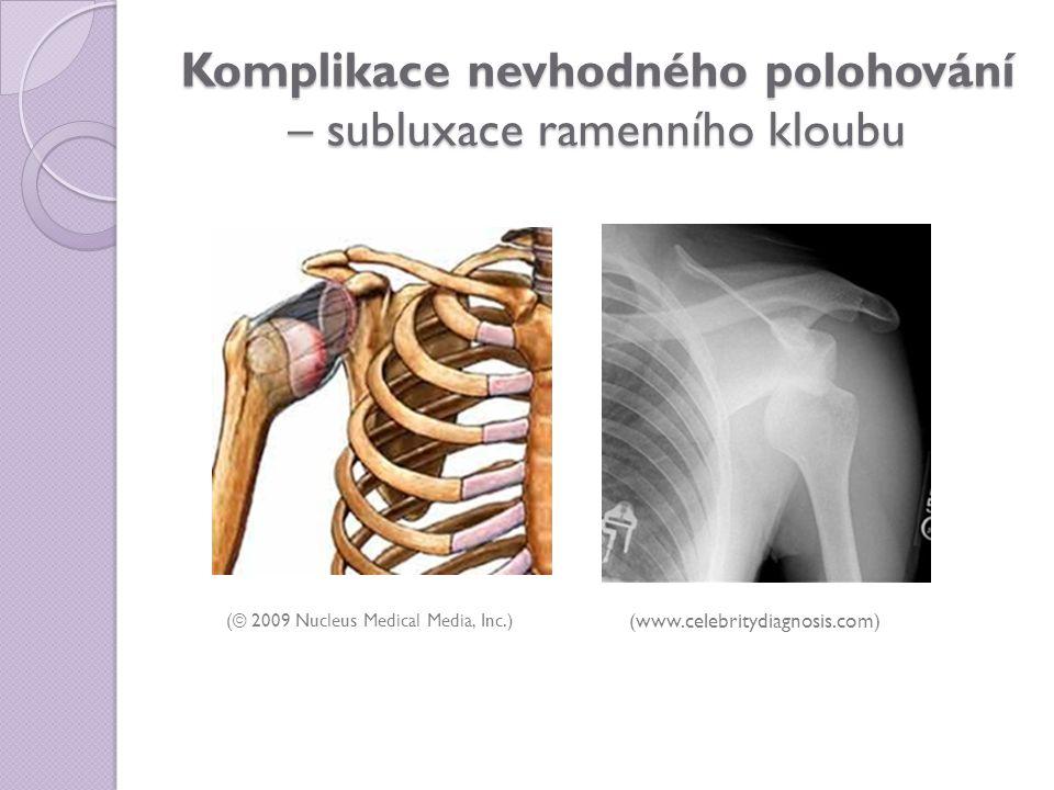 Komplikace nevhodného polohování – subluxace ramenního kloubu