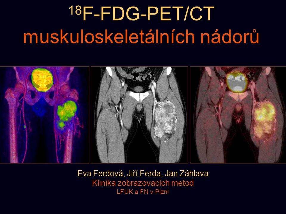 18F-FDG-PET/CT muskuloskeletálních nádorů