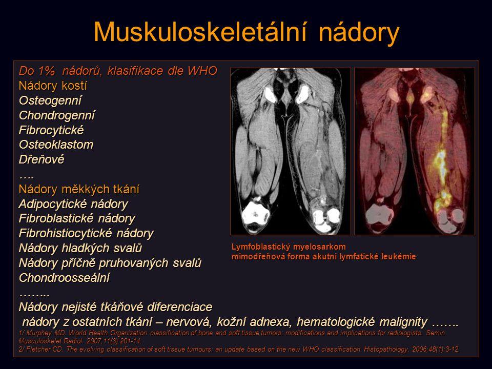 Muskuloskeletální nádory