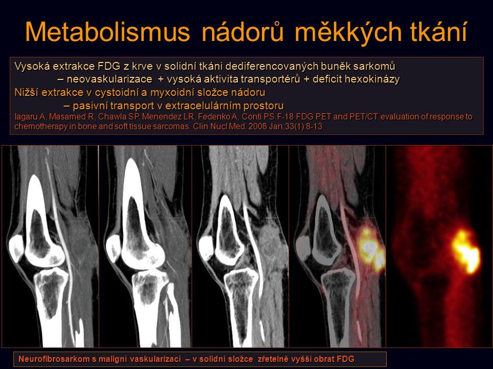 Metabolismus nádorů měkkých tkání