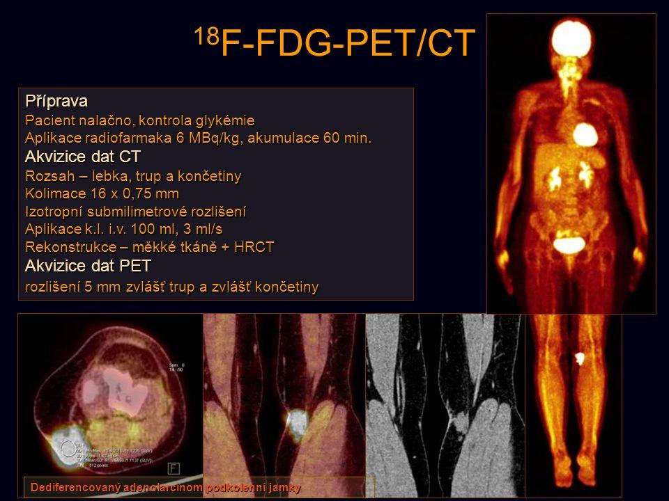 18F-FDG-PET/CT Příprava Akvizice dat CT Akvizice dat PET