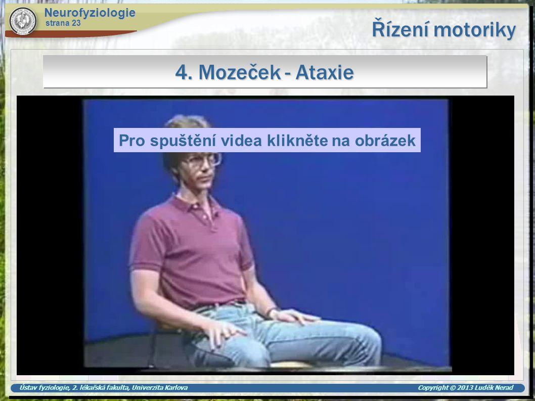 Řízení motoriky 4. Mozeček - Ataxie