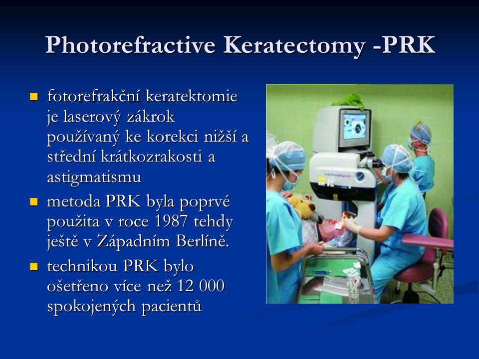 Photorefractive Keratectomy -PRK