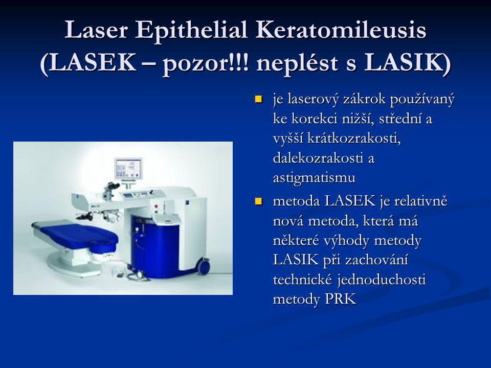 Laser Epithelial Keratomileusis (LASEK – pozor!!! neplést s LASIK)