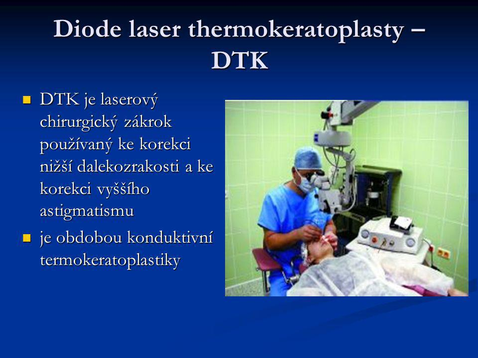 Diode laser thermokeratoplasty – DTK