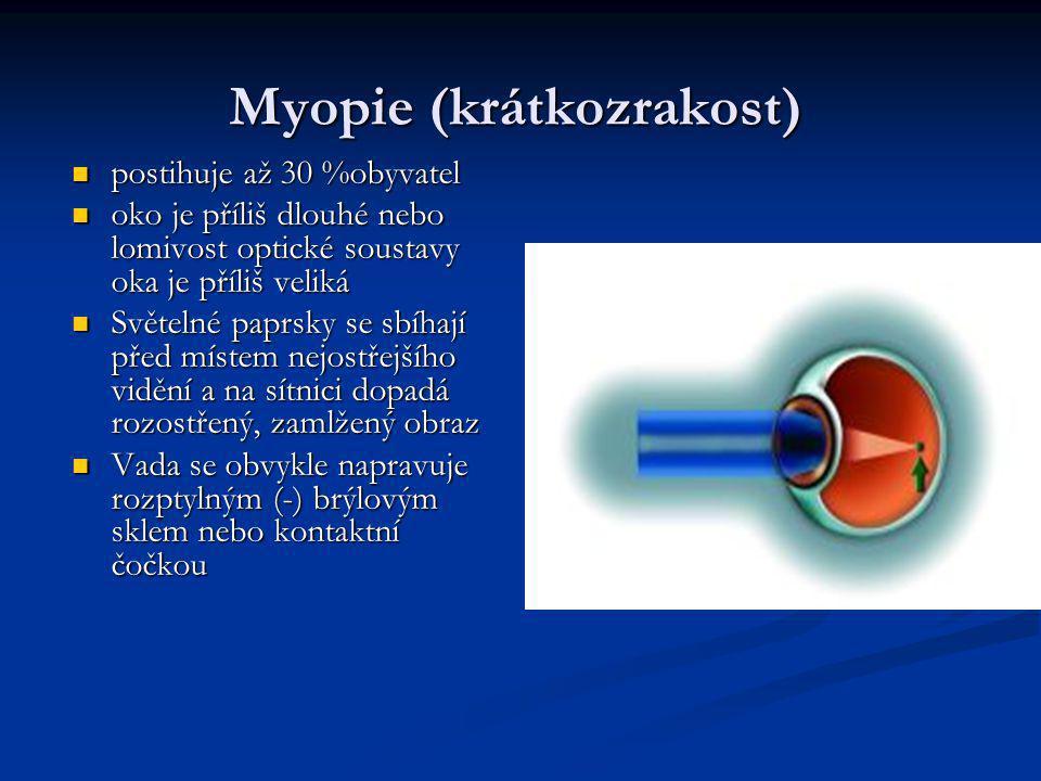 Myopie (krátkozrakost)