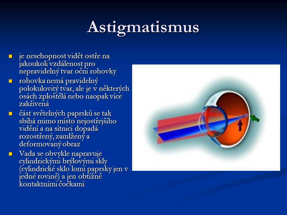 Astigmatismus je neschopnost vidět ostře na jakoukoli vzdálenost pro nepravidelný tvar oční rohovky.