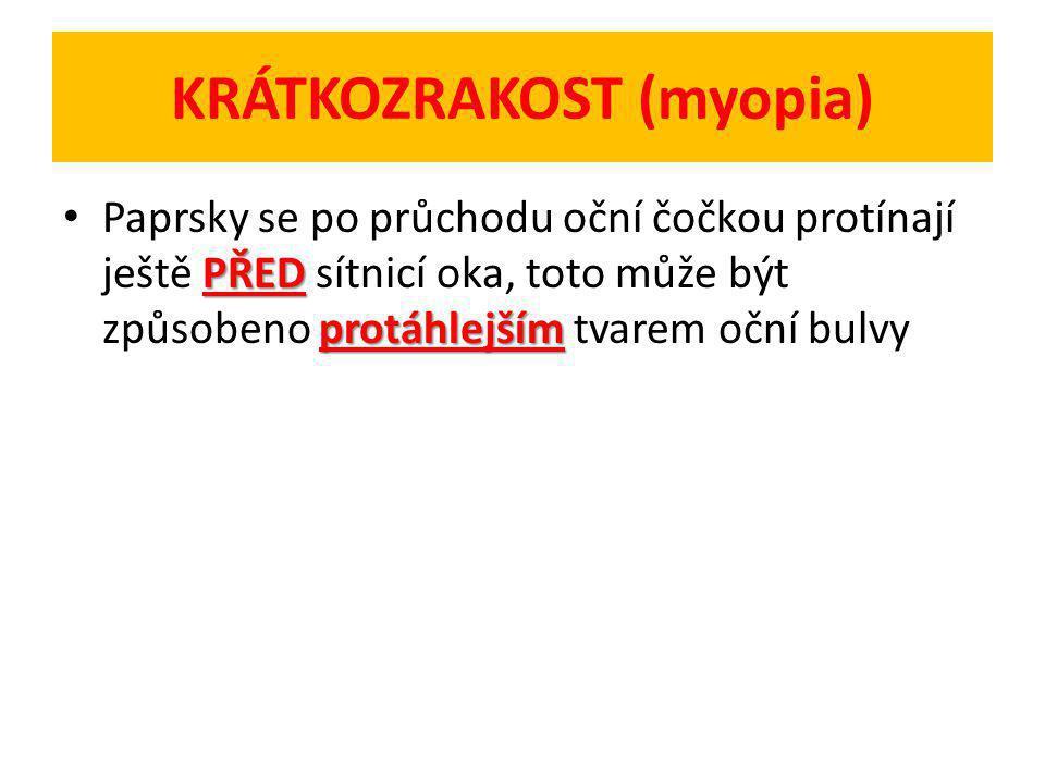KRÁTKOZRAKOST (myopia)