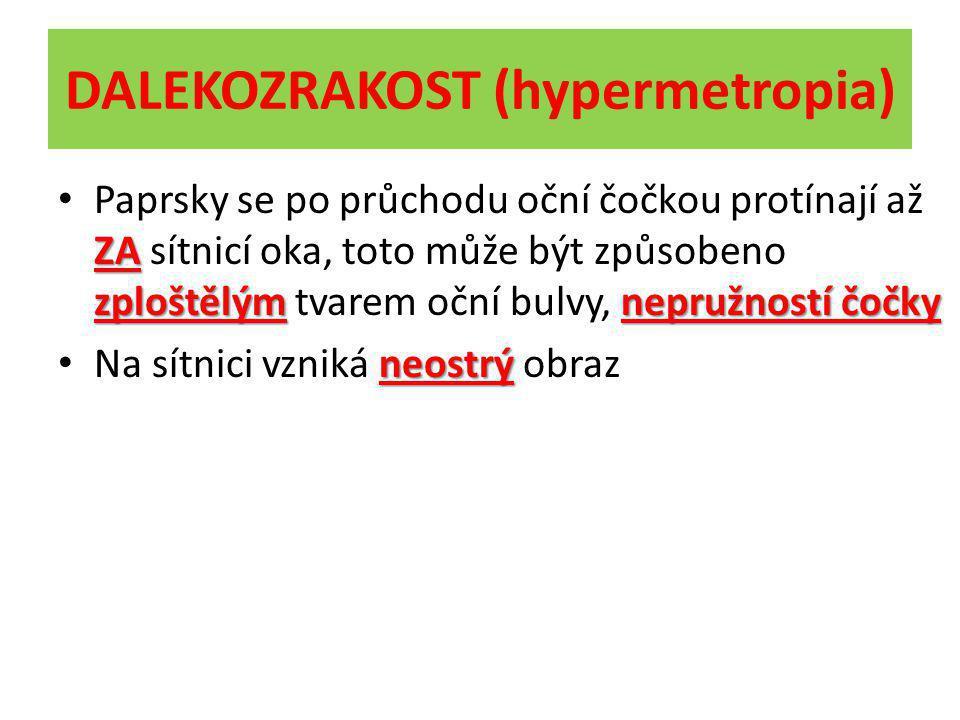 DALEKOZRAKOST (hypermetropia)