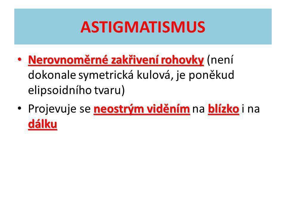 ASTIGMATISMUS Nerovnoměrné zakřivení rohovky (není dokonale symetrická kulová, je poněkud elipsoidního tvaru)