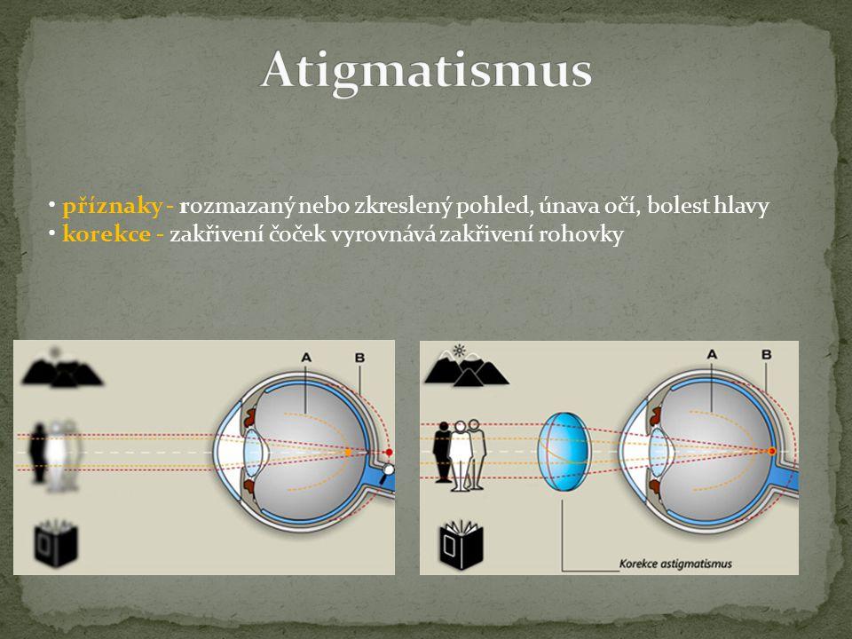 Atigmatismus • příznaky - rozmazaný nebo zkreslený pohled, únava očí, bolest hlavy.