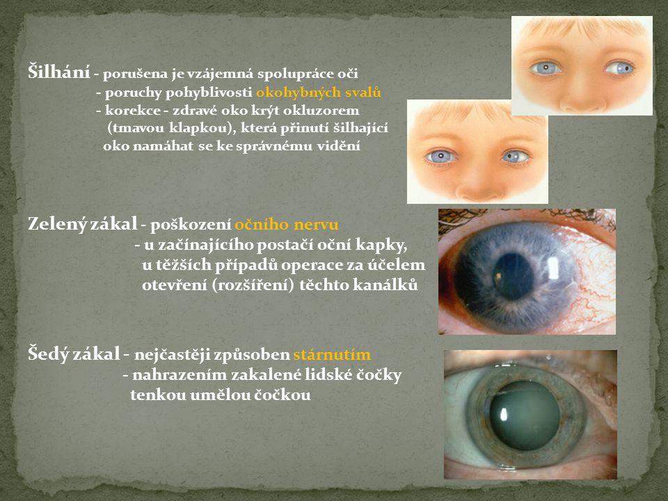 Šilhání - porušena je vzájemná spolupráce oči