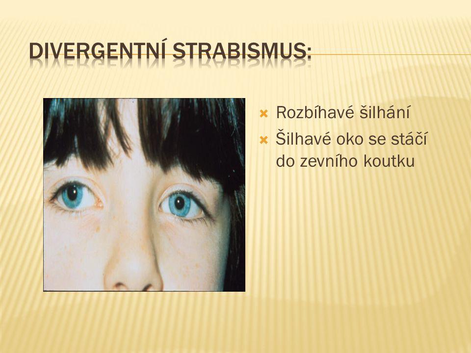 Divergentní strabismus: