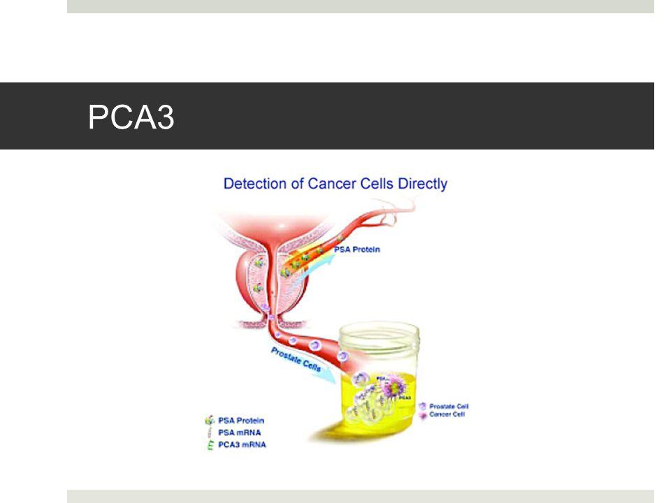 PCA3 - biomarker detekovaný v močovém sedimentu po masáži prostaty (3 strokes) - nekódující segment mRNA lokalizovaný na 9. Chromosomu.