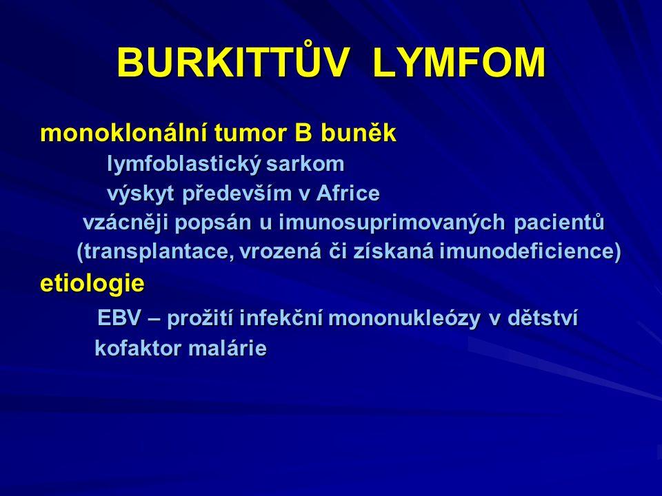 BURKITTŮV LYMFOM monoklonální tumor B buněk etiologie