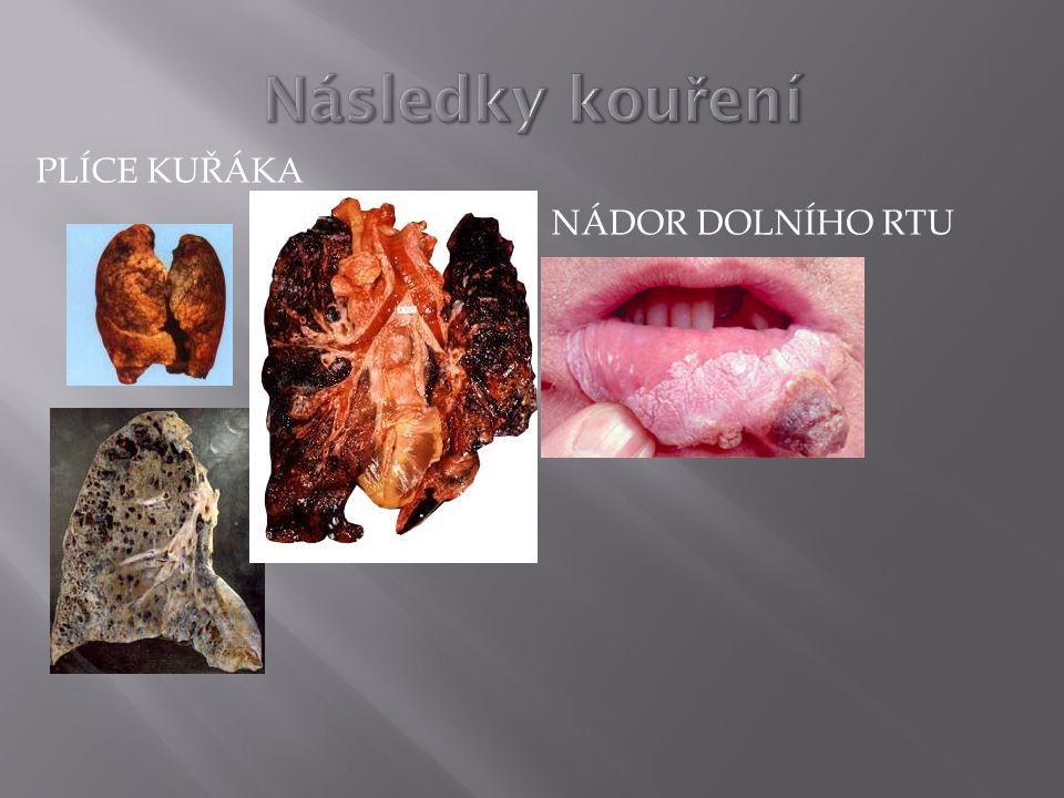 Následky kouření Plíce kuřáka Nádor dolního rtu