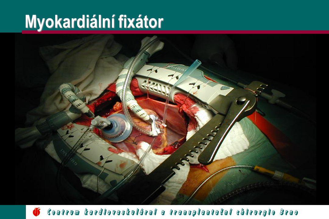 Myokardiální fixátor Centrum kardiovaskulární a transplantační chirurgie Brno