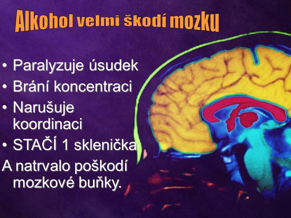 Alkohol velmi škodí mozku