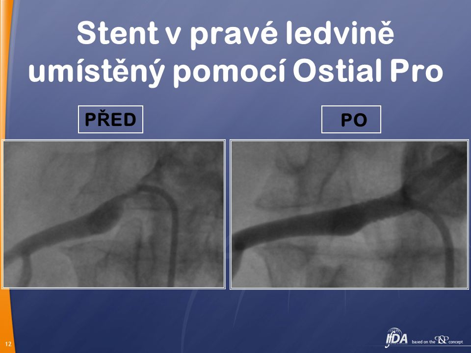 Stent v pravé ledvině umístěný pomocí Ostial Pro