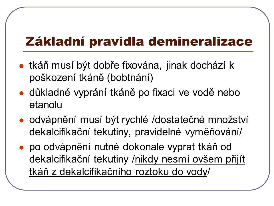 Základní pravidla demineralizace