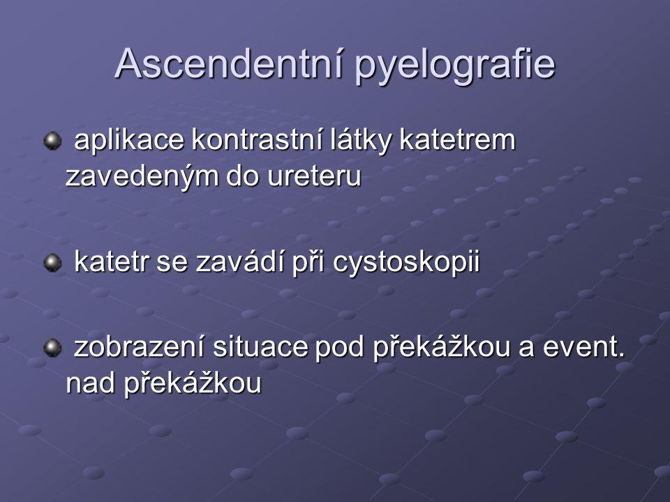 Ascendentní pyelografie