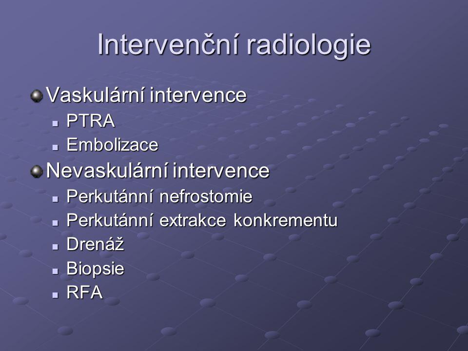 Intervenční radiologie