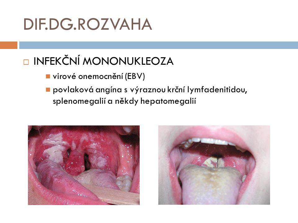 DIF.DG.ROZVAHA INFEKČNÍ MONONUKLEOZA virové onemocnění (EBV)