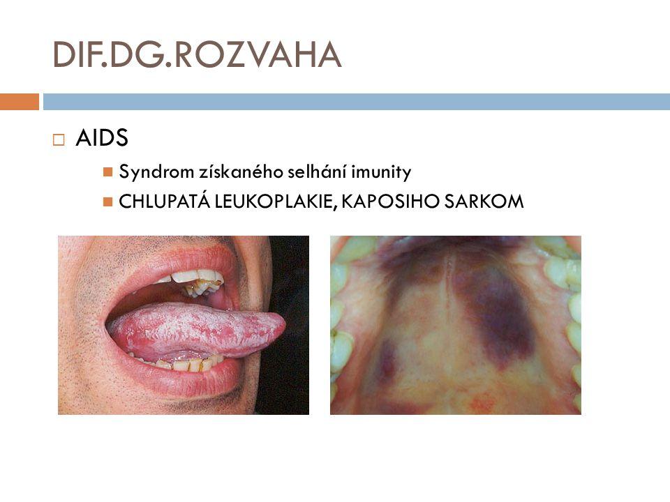 DIF.DG.ROZVAHA AIDS Syndrom získaného selhání imunity