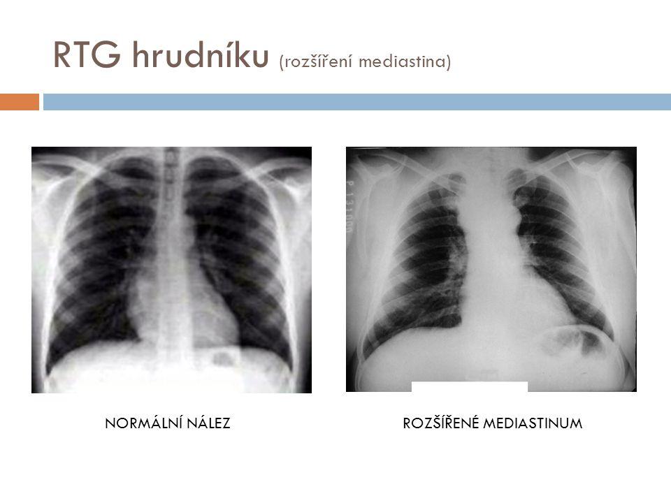 RTG hrudníku (rozšíření mediastina)