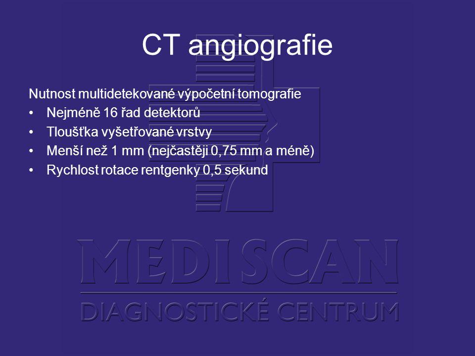 CT angiografie Nutnost multidetekované výpočetní tomografie