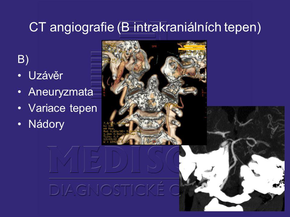 CT angiografie (B intrakraniálních tepen)