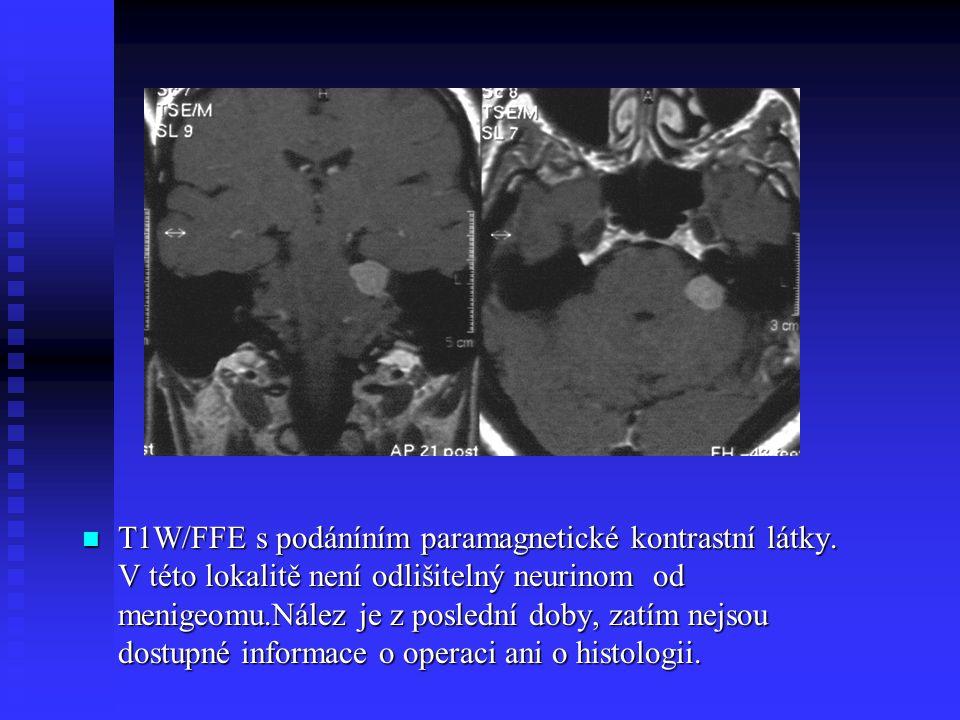 T1W/FFE s podáníním paramagnetické kontrastní látky