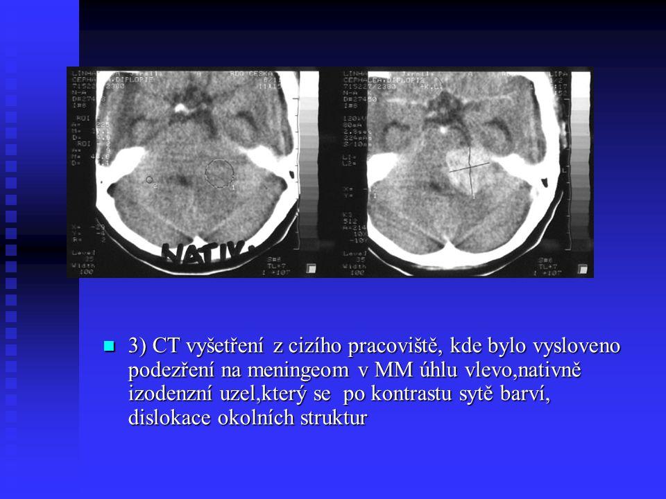 3) CT vyšetření z cizího pracoviště, kde bylo vysloveno podezření na meningeom v MM úhlu vlevo,nativně izodenzní uzel,který se po kontrastu sytě barví, dislokace okolních struktur