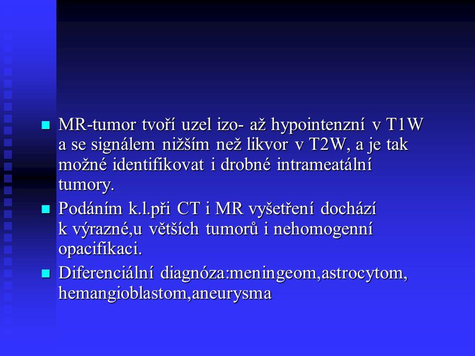 MR-tumor tvoří uzel izo- až hypointenzní v T1W a se signálem nižším než likvor v T2W, a je tak možné identifikovat i drobné intrameatální tumory.