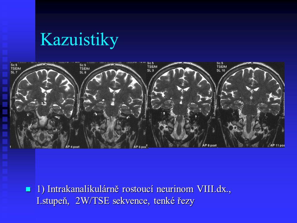 Kazuistiky 1) Intrakanalikulárně rostoucí neurinom VIII.dx., I.stupeň, 2W/TSE sekvence, tenké řezy